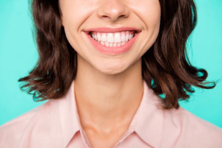 Dentes desalinhados podem ir além da questão estética